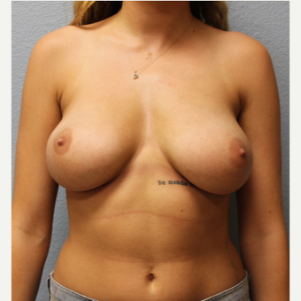 18-24 year old woman treated with Breast Lift before 3424371