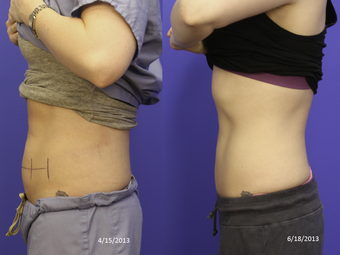 CoolSculpting before 1024386