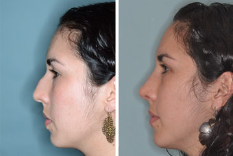 Post-Op Female Rhinoplasty and Septoplasty before 1413631