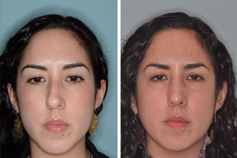 Post-Op Female Rhinoplasty and Septoplasty 1413631