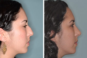 Post-Op Female Rhinoplasty and Septoplasty after 1413631