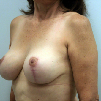 35-44 year old woman treated with Breast Lift with Implants after 3366500