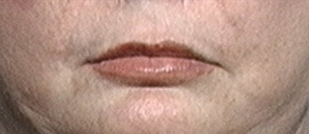 Lip Augmentation after 639522