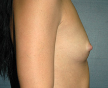 Breast Implants before 3545114