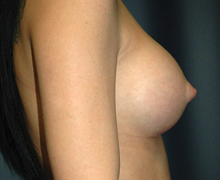 Breast Implants after 3545114