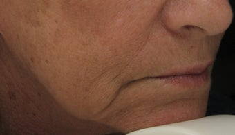 Marionette Line after Treatment with Juvederm Ultra Plus Injection gel before 52825