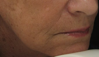 Marionette Line after Treatment with Juvederm Ultra Plus Injection gel after 52825