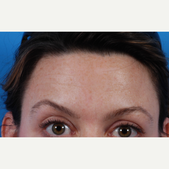 35-44 year old woman treated with Botox after 3621197