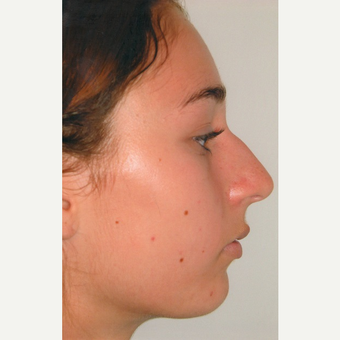 17 or under year old woman treated with Rhinoplasty before 3465418