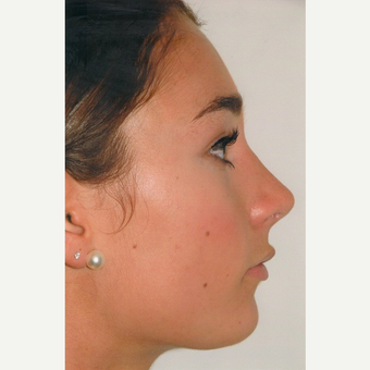 17 or under year old woman treated with Rhinoplasty after 3465418