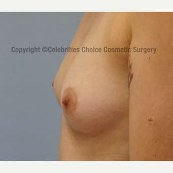 25-34 year old woman treated with Breast Implants before 3326188