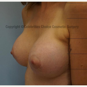 25-34 year old woman treated with Breast Implants after 3326188