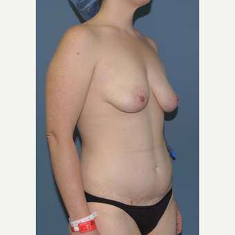 25-34 year old woman treated with Breast Lift with Implant
