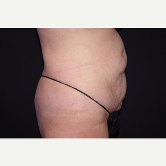 35-44 year old woman treated with Tummy Tuck before 3123649