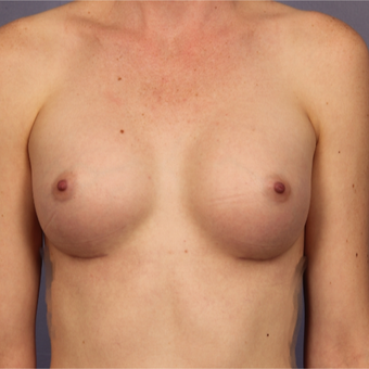 Breast implants after 3646869