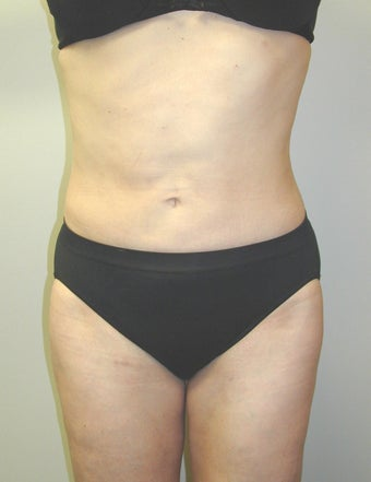 SmartLipo after 607527