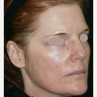 45-54 year old woman treated with Chemical Peel after 3091005