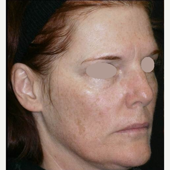 45-54 year old woman treated with Chemical Peel before 3091005