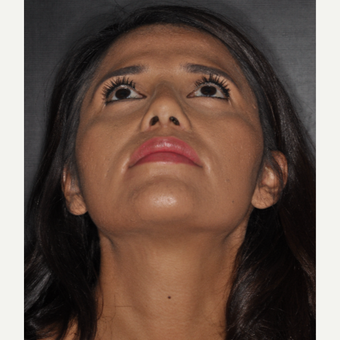 25-34 year old woman treated with Rhinoplasty 10 days post-op after 3452308