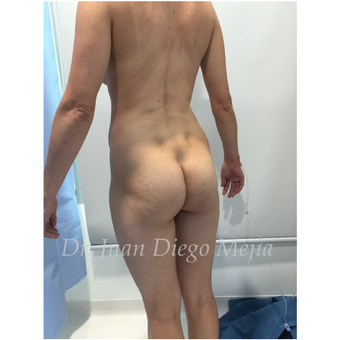 25-34 year old woman treated with Butt Implants before 2692704