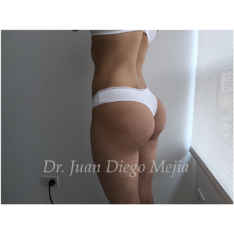 25-34 year old woman treated with Butt Implants after 2692704