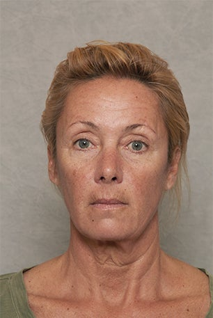 Neck Lift - 52 Year Old Female before 1392503