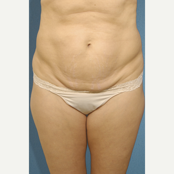 35-44 year old woman treated with Liposculpture before 3407586