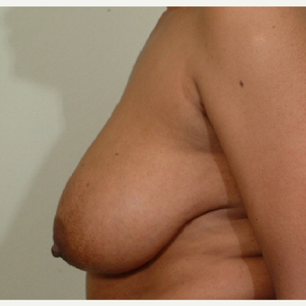 35-44 year old woman treated with Breast Reduction before 3603352