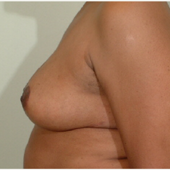35-44 year old woman treated with Breast Reduction after 3603352