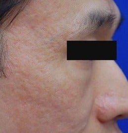 25-34 year old man treated with Acne Scars Treatment