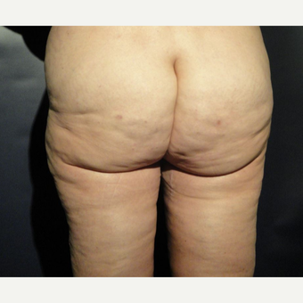 45-54 year old woman treated with Cellfina after 3036248