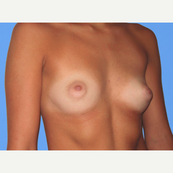 Breast Augmentation before 3731590
