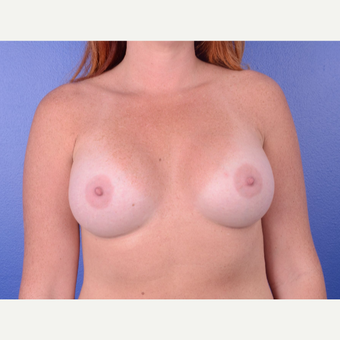 25-34 year old woman treated with Breast Augmentation after 2994146