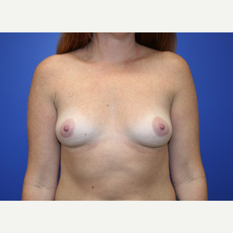 25-34 year old woman treated with Breast Augmentation before 2994146