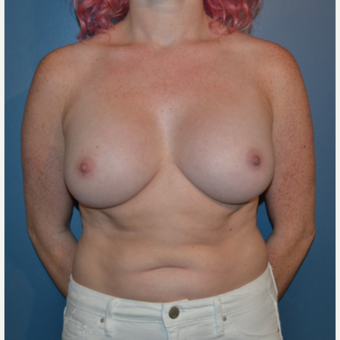 25-34 year old woman treated with Breast Implants after 3445894