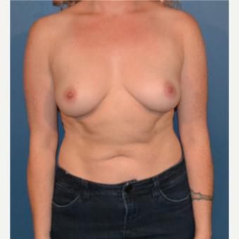25-34 year old woman treated with Breast Implants before 3445894