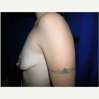 25-34 year old woman treated with Breast Augmentation before 3696588
