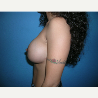 25-34 year old woman treated with Breast Augmentation after 3696588