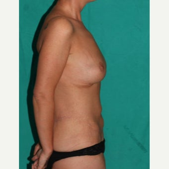 45-54 yo. woman treated with Body Lift + central pedicle based breast uplift after 1563034