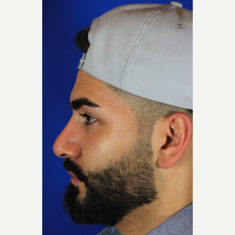 Male Rhinoplasty after 3465464