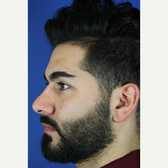 Male Rhinoplasty before 3465464