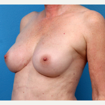55-64 year old woman treated with Fat Transfer after 3218999