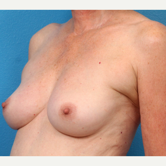 55-64 year old woman treated with Fat Transfer before 3218999