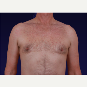 45-54 year old man treated with Male Breast Reduction after 3439652
