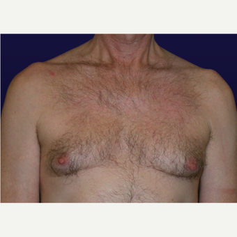 45-54 year old man treated with Male Breast Reduction before 3439652