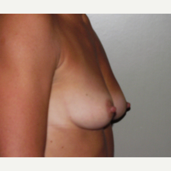 35-44 year old woman treated with Breast Augmentation before 3154065
