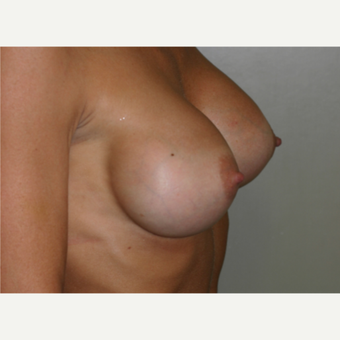 35-44 year old woman treated with Breast Augmentation after 3154065