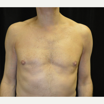 45-54 year old man treated with Male Breast Reduction after 3181706
