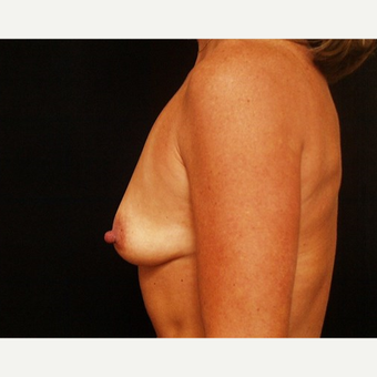 35-44 year old woman treated with Breast Augmentation before 3576328