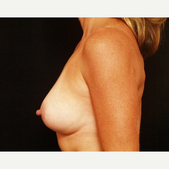 35-44 year old woman treated with Breast Augmentation after 3576328